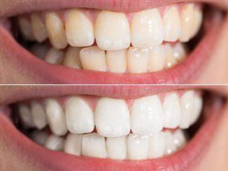 Slow Cosmétique : Des dents blanches au naturel